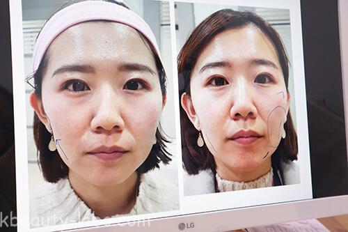 韓方医院美容鍼ビフォーアフター