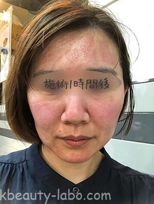 ユーアンドアイ皮膚科毛穴体験談